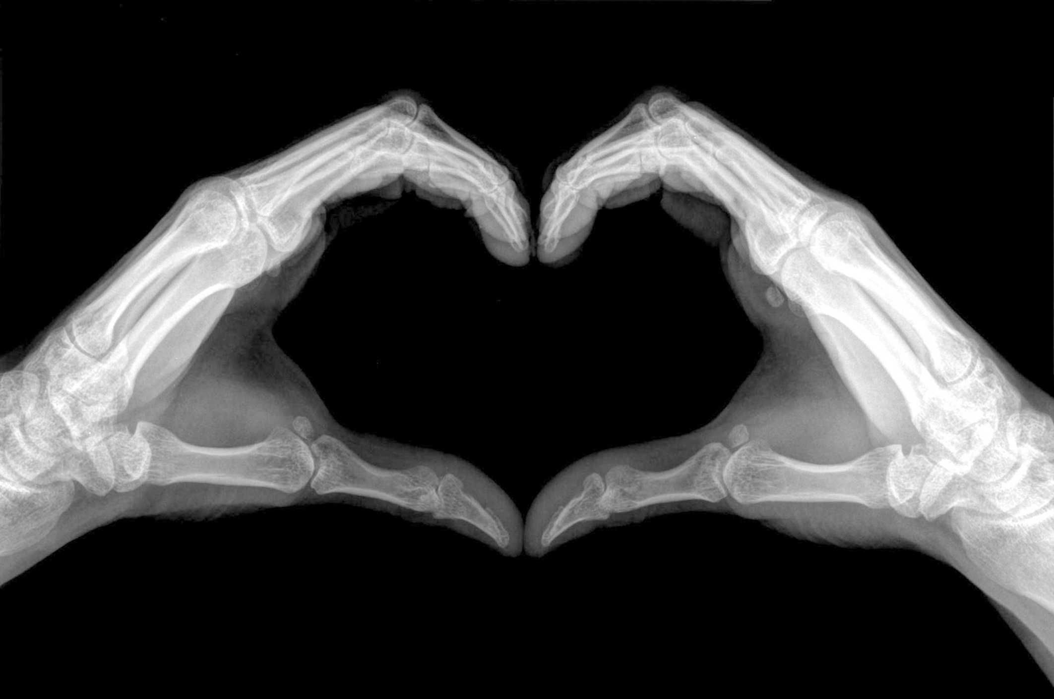 x-ray image of hands shows heart sign.