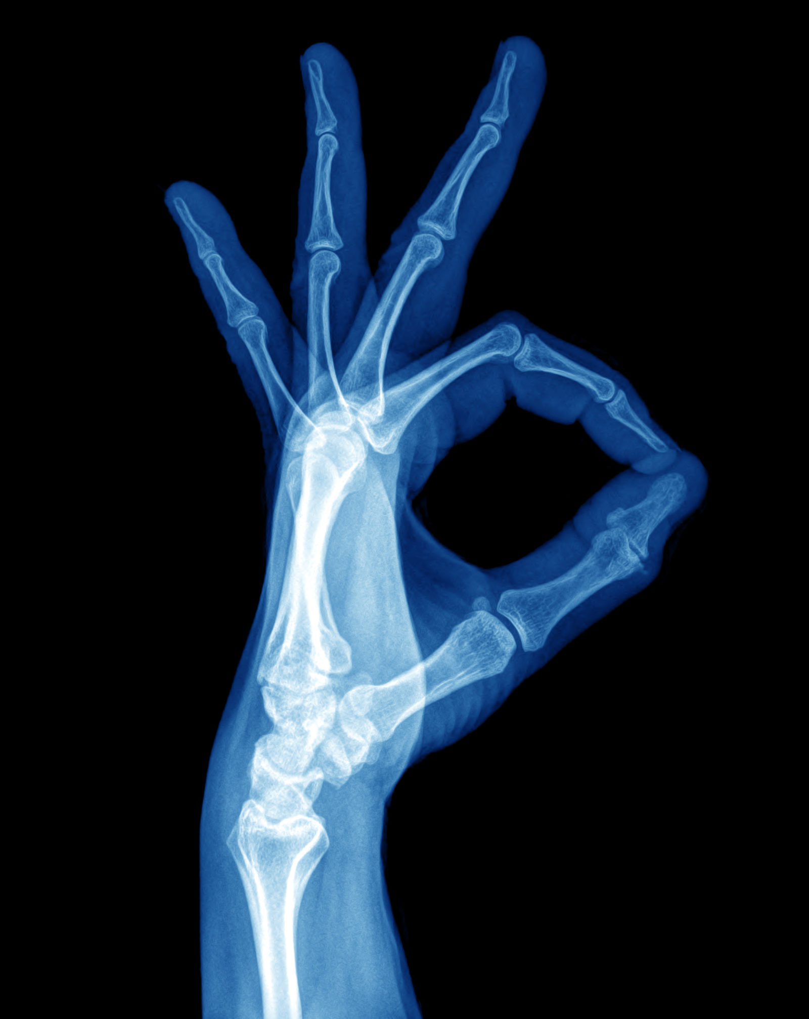 X-Ray image of hand human